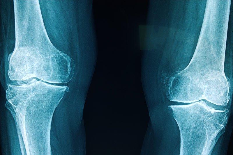 Bone Marrow Ablation